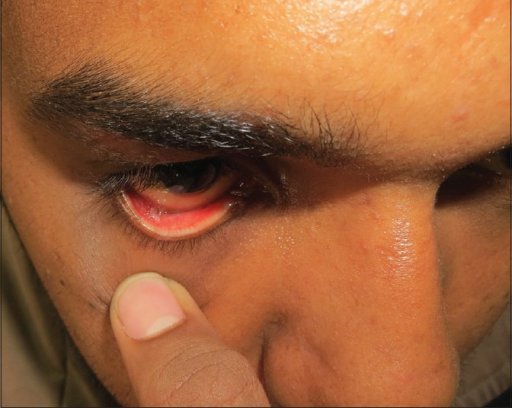 Two weeks postoperative view showing conjunctival healing and the sulcular depth