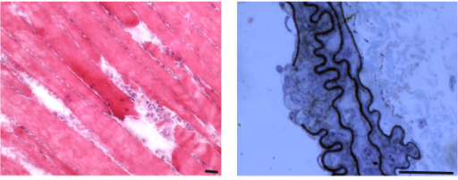 Examples of focal injuries. (LEFT) Hematoxilin-and eosin-stained murine skeletal muscle, longitudinally sectioned to show the gaps in three adjacent fibers. The injury likely occurred following an intense exercise session (wheel running). Upon leakage of the broken sarcolemma, factors such as Wnt are released before a fast repair process known as patch repair occurs. In turn, Wnt factors trigger the activation of satellite cells and other resident interstitial cells with myogenic potential, which proliferate, migrate and fuse into small myotubes that ultimately fuse with the damaged fibers. (RIGHT) Toluidine blue-stained semithin section of a murine carotid showing damage, likely due to smooth muscle cell-restricted inactivation of the serum response factor gene. A rupture of the endothelial layer, as well as of the elastin matrix, with exposure of underlying cells is visible; release of intracellular factors (von Willebrand Factor) and exposure of undisclosed antigens (collagen) are essential for the subsequent phases of clot formation, remodeling and repair of the wall defect. Bar = 25 micron.