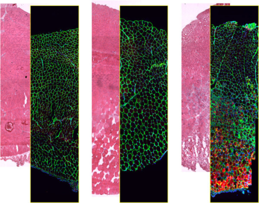 Integrity of the extra cellular matrix following muscle injury. Hematoxilin- and eosin-staining (H&E) and immunofluorescence localization of the membrane basement component laminin (green) on serial cross-sections of murine Tibialis anterior muscle (only a portion of the muscle is shown). Thirty minutes before fixation, the muscle was subjected to two types of physical injury: mechanical stress by crunching and tearing with forceps (LEFT) and freezing by applying a liquid nitrogen-cooled steel forceps to the surface (facing down in the picture) for 10 seconds (CENTER). Apart for the edema and fiber swelling visible in the images on the right, no major alterations of the basement membrane are seen following focal injury. In mice injected with Evans Blue Dye (EBD, RIGHT), injury muscle fiber necrosis (red) is apparent 8 h after freezing thanks to accumulation of EBD in the interior part of the damaged fibers. The muscle fibers die and are either renewed or replaced within the intact scaffold represented by the membrane basement, which wraps each fiber.