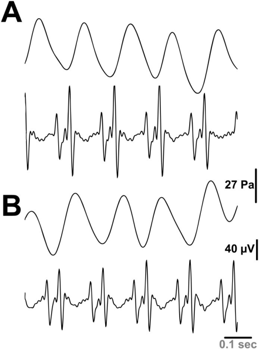 Spontaneous rhythmic contractions (pulse pressure) of the aorta correlated to ECG.(A, B) Representative tracings of aortic contractions (upper panel) and ECG recording (lower panel) before (A) and after (B) bleeding the rat.