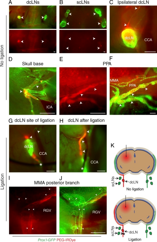 Dura mater lymphatic vessels drain brain ISF into dcLNs. (A–J) Analysis of lymphatic outflow routes of cerebral ISF by fluorescent stereomicroscopy in Prox1-GFP (green) mice 1 h after PEG-IRDye (red) injection into the brain parenchyma without (A–F) and with (G–J) ligation of the efferent lymphatic vessel of the dcLN. See K for schematic illustration of the experimental setup and summary of the results with and without ligation. (A and B) dcLNs and scLNs (both indicated with arrowheads) showing preferential filling of the ipsilateral dcLN but no filling in the scLNs. (C) Drainage into the ipsilateral dcLN via the efferent carotid lymphatic vessels (arrowheads). CCA, common carotid artery. (D) Internal carotid artery (ICA) and adjacent lymphatic vessels (white arrowheads) immediately below the osseous skull, showing drainage from the skull (yellow arrowhead). (E and F) Lymphatic vessels around the pterygopalatine artery (PPA), showing tracer uptake by the dura mater lymphatic vessels (arrowheads) only in the basal parts of the skull, nearby their exit site. MMA, middle meningeal artery. (G) Placement of a suture around the efferent lymphatic vessel (asterisk) of the dcLN. Arrowheads, afferent lymphatic vessels. (H) Afferent lymphatic vessel of the dcLN after ligation (asterisk), showing bulging of the afferent vessels (arrowheads). (I and J) Lymphatic vessels around the posterior branch of the MMA, showing increased filling of lymphatic vessels after ligation, extending above the retroglenoid vein (RGV) level. n = 2–3/group. Data are representative of two independent experiments. Bars: (A–E and G–J) 500 µm; (F) 100 µm.