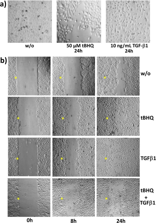 HPDE cell morphology and wound healing after Nrf2 activation by tBHQ or TGF-β1 treatment.A) HPDE cells were treated with 50 μM tBHQ or 10 ng/mL TGF-β1, or were left untreated for 24h. Then, cells were analysed by microscopy (at 200x magnification) and photographs were taken. B) Confluently grown HPDE cells in a two-chamber insert were treated with 50 μM tBHQ or 10 ng/mL TGF-β1, either alone or in combination, or were left untreated. Then, the insert was removed (t = 0h) and selected areas were analysed by microscopy (at 100x magnification) and photographed at the indicated periods. *marks the intitial wound edges.