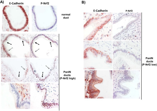 Immunohistochemistry analysis for activated Nrf2 and E-cadherin expression in premalignant pancreatic tissues.Formalin fixed and paraffin embedded pancreatic tissues from CP patients was subjected to immunostaining for P-Nrf2 and E-cadherin. Representative images are shown of (A) normal ducts and PanIN lesions exhibiting high expression of P-Nrf2 or (B) PanIN lesions with low expression of P-Nrf2 that display the respective reciprocal expression level of E-cadherin. Usage of the isotype matched control antibodies revealed no or only weak background staining (not shown). Images were taken at 400x magnification. Arrows indicate ductal regions of reciprocal P-Nrf2 and E-cadherin expression within the same lesion.