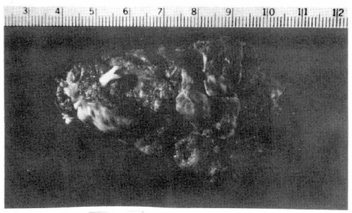 Anterior view of the thrombus taken from left ventricle. Left end of the thrombus was connected to left ventricular apex and right end was free-floating in left ventricular outflow tract. Thrombus measured 7.0×4.5×2.7 cm and weighed 35 gm.