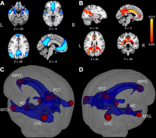 Task-induced deactivation in the default mode network (DMN) and DMN white matter (WM) pathways. (A) Regions showing significant deactivation at FWE-corrected p < 0.05. (B) Statistical map of probabilistic tractography indicating the proportion of streamlines passing through each voxel. The scale indicates a minimum value of 0.001 (0.1%) of all attempted streamlines passing through a given voxel, while the maximum was set at 0.015 (1.5%) of all attempted streamlines passing through a given voxel. Coordinate below each image is the MNI coordinate for that slice. (C,D) WM pathways (blue) connecting DMN regions (red) after averaging the entire group and thresholding at 0.1% of all streamlines attempted passing through a voxel. The WM pathways shown in blue were used to extract fractional anisotropy (FA) in each participant. LOC, lateral occipital cortex; MTG, middle temporal gyrus; HC, hippocampus; PCC, posterior cingulate cortex; MPFC, medial prefrontal cortex.
