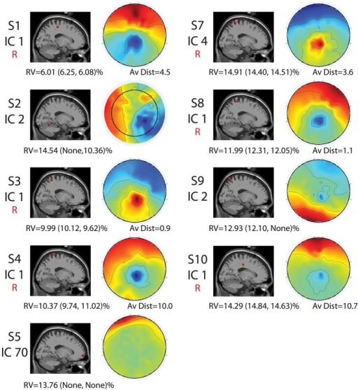 "Cortical component characteristics. Cortical locations, topographic maps, residual variance (RV) values for the full set and for each half set for the split-half comparisons (in parentheses), and average distance between analogous components for the full-set and each half set in Talairach coordinates are shown for the nine components with RV < 15% and neural locations for the full set. The word ""None"" appears when there were no components with neural locations and RVs < 15% for a given set. Components that were reliably identified for all three sets are labeled with a red ""R."" Alone, these characteristics are not enough to declare all of these components non-neural."