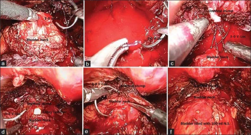 Vescourethral ananstomosis. (a) First bite at 3 o' clock. (b) Threading into the end. (c) Suturing the back wall. (d) Indwelling the catheter. (e) Complication of the UVA. F. Test for urine leakage