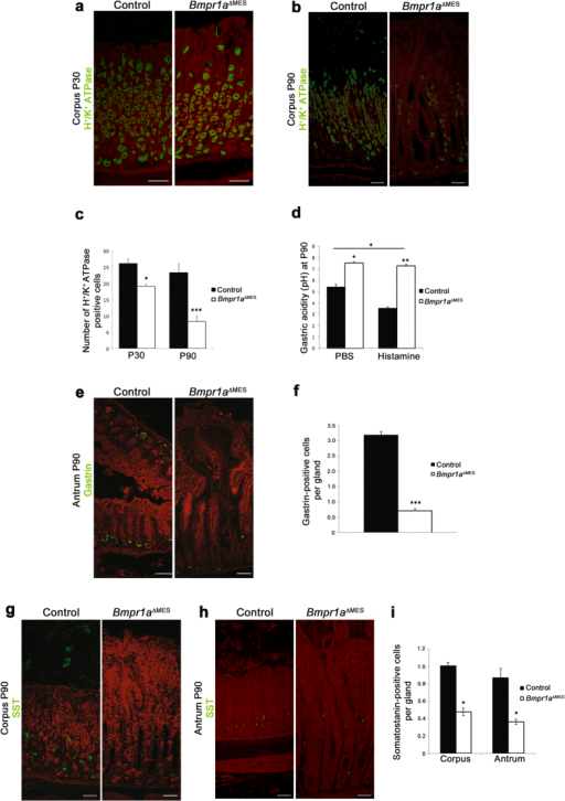 Loss of mesenchymal Bmp signaling leads to gastric hypochlorhydria and modulates gastrin and somatostatin cell populations.(a) Proton pump staining associated with parietal cells performed on mutant and control stomachs showed a decrease in the number of parietal cells in 30-day-old mutant stomach (b) with a noticeable loss by 90 days. (c) Statistical analysis of the number of H+/K+-ATPase positive cells revealed a significant decrease in parietal cells of the gland units in 30-day-old Bmpr1aΔMES mice and in 90-day-old Bmpr1aΔMES mice (n = 5). (d) Measurement of basal (PBS) and stimulated (histamine) gastric acid secretion in 16-hour fasted 90-days-old mice showed that basal and histamine-induced intragastric acidity was significantly lower (higher pH) in both conditions in Bmpr1aΔMES mice compared to controls (n = 6). (e) Staining against gastrin (green staining) showed a decrease in the number of this sub-population of endocrine cells in 90-day-old Bmpr1aΔMES stomachs compared with controls. (f) Positive gastrin-labeled cells were counted from the antrum of control and mutant animals and statistical analysis revealed a significant decrease in number of gastrin cells in Bmpr1aΔMES mice (n = 6). (g) Staining against somatostatin (green staining) performed on 90-day-old Bmpr1aΔMES and control corpus and (h) antrum revealed a decrease in positively-labeled somatostatin cells in mutant mice. (i) Statistical analysis also confirmed the significant decrease in the number of somatostatin-positive cells in Bmpr1aΔMES mice (n = 6). Evans Blue served as counterstain for all immunofluorescences (red staining). Scale bar: 50 μm. Two-way ANOVA (b,e,g), Mann-Whitney (c); *p < 0.05; **p < 0.01; ***p < 0.001.