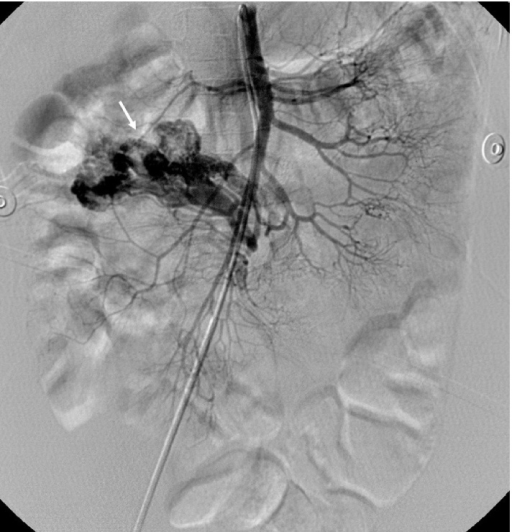 Selective angiography of Case 1 shows an early venous drainage with vascular tangle in distal jejunal branch (white arrow).