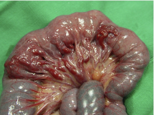 Gross appearance shows tortuous vascular branch around mesenteric surface of the jejunum.