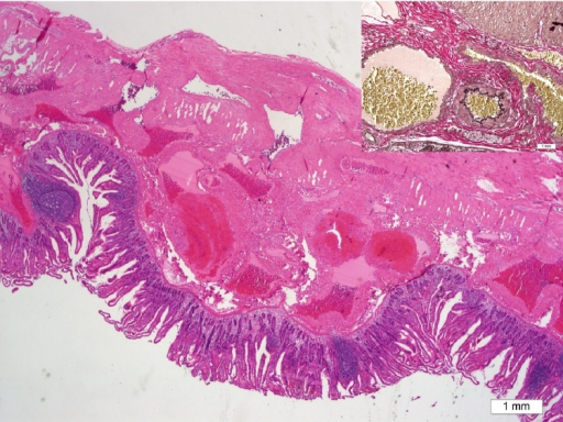Multiple dilated vascular structures of variable sizes and the thickness of the wall affecting the bowel submucosa, muscularis propria, and subserosa (H&E stain, ×20). In inlet, the abnormally dilated vein (left side of image) and artery (right side of image) (Elastic fiber stain, ×100).