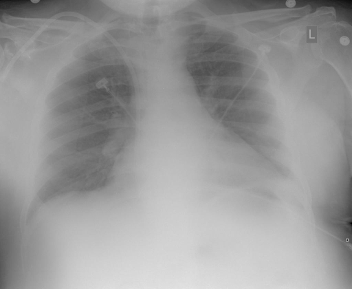 Xray Chest PA and Lateral