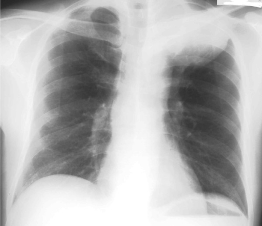 Posterior-anterior view of a chest X-ray film demonstrated a huge mass shadow in the left upper lung field.