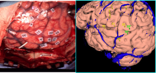Plotting Coordinates. Left. A surgical photograph with Cortical Stimulation Mapping (CSM) sites. Right. A cortical surface of the patient's own brain onto which we have plotted the CSM points. Veins are in blue, and provide landmarks that enable the user to more easily match the photograph with the surface than would be possible with sulci and gyri alone. Sites that have been found to be significant for language are colored green.