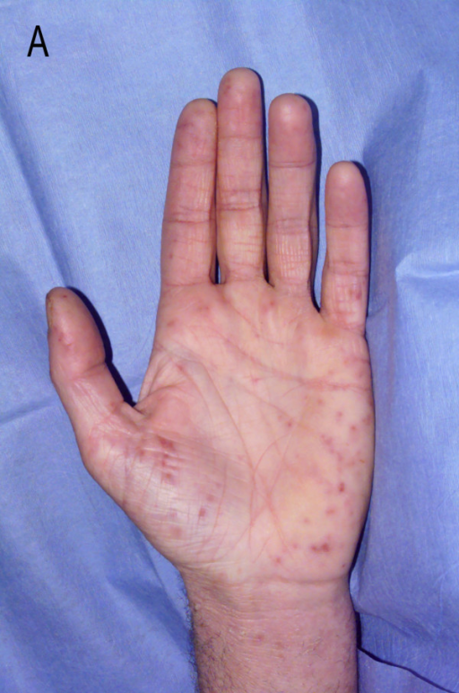 Erythematous macular non-blanching skin rash  | Open-i