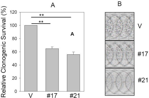 Suppression of clonogenic survival and anchorage independent growth by miR-205Clonogenic assay (A and B) and soft agar assay (C, D and E) were performed as described in Materials and Methods. B, Representative wells of the colonies. D, Representative fields of colonies in soft agar and E, Closeups of the formed colonies. Note that the colonies are larger in vector control than miR-205 #17 or #21. Values in B and C are means of three separate experiments ± SE. V, vector; #17, miR-205 # 17; #21, miR-205 # 21**, p < 0.01.