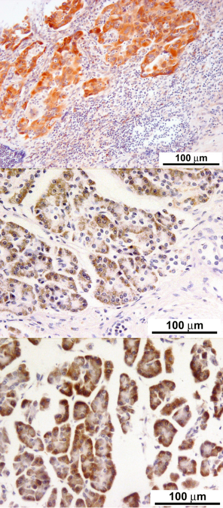 Strong expression of M2-pyruvate kinase in a positive control (lung cancer) and benign pancreatic non-ductal epithelium: Immunohistochemical staining for M2-pyruvate kinase on formalin fixed lung adenocarcinoma (× 20), demonstrating a strong uptake of the stain. This was used as a positive control (top panel); Immunohistochemical staining for M2-pyruvate kinase on chronic pancreatitis (× 20), demonstrating moderate staining of benign non-ductal pancreatic epithelium (middle panel); Immunohistochemical staining for M2-pyruvate kinase on normal non-ductal pancreatic epithelium (× 20), demonstrating a strong uptake of stain (bottom panel).