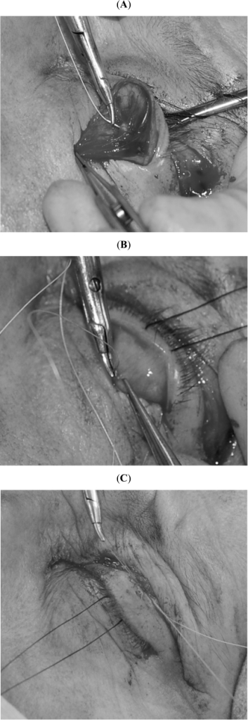 Surgical Technique. A double armed 5-0 vicryl® suture isplaced centrally through the posterior belly of the white-line (A), ina forehand manner and is then passed through the conjunctivalsurface of the tarsal plate, 1 mm below its superior border (B), andthen through to the skin. The eyelid height and contour is assessedafter tying this first suture in a bow (C).