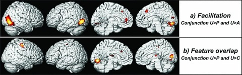 Areas of significant brain activation (conjunction , threshold at uncorrected P < 0.001, masked with first term at uncorrected P < 0.05) representing the processing of (a) facilitative distractors and (b) distractors with feature overlap, rendered onto the lateral and medial surface of a standard brain (see also Table 4).