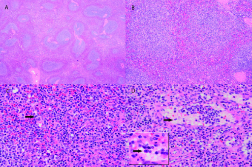 Figure 1:Histological and immunohistochemical features of ...