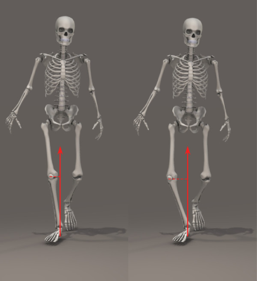 The knee adduction moment (KAM) increases when walking with greater varus alignment of the knee (shown on the right) as the perpendicular distance of the ground reaction force vector from the knee joint centre is greater, resulting in a longer moment arm.