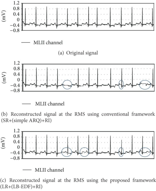 Snapshot of ECG signal fluctuations for MLII channel when PER is 0.1 and the patient moves at 2 km/h.