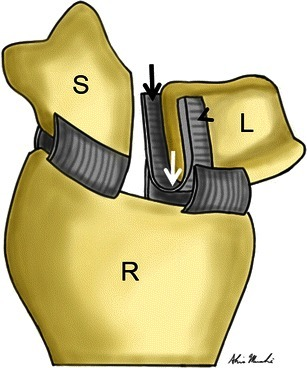 Illustration of scapholunate interosseous ligament anat | Open-i