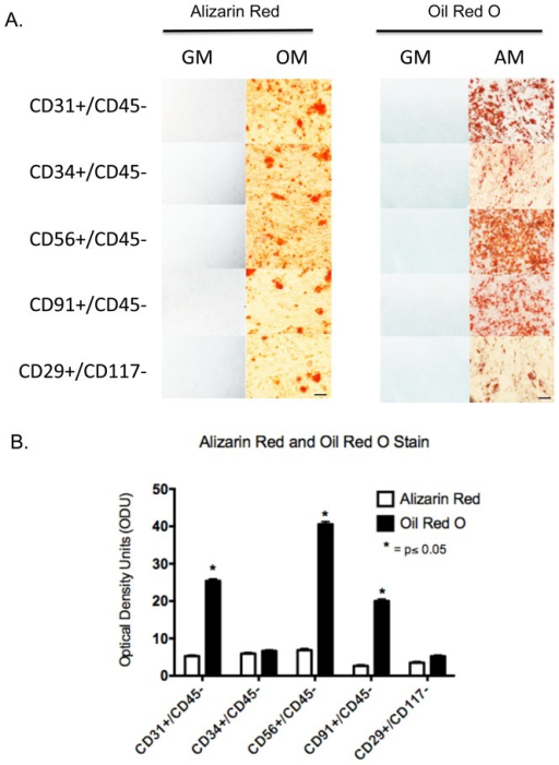 Osteogenesis and adipogenesis of CD29+, CD31+, CD34+, CD56+ and CD91+ cells.A. Flourescent-conjugated antibodies to CD29, CD31, CD34, CD56 and CD91 were used to separately sort and subculture cells form collagenase 2 digested human muscle. The cells were cultured to confluence then the cells were cultured for an additional three weeks in either osteogenic media (OM), adipogenic media (AM) or regular growth media (GM). The cultures were fixed and processed for Alizarin Red or Oil Red O staining. Scale bar  = 100 µm. B. For each marker the bar graph reflects the number of optical density units (ODU) (mean ± SEM, n = 5), as measured with Image J, for Alizarin and Oil Red O staining of isolated cell types differentiated in osteogenic media (OM) and adipogenic media (AM). Significant difference is observed (*) in Oil Red O staining between CD34 and CD29 compared to CD31, CD56, and CD91 (Student's t-test, p≤0.05).