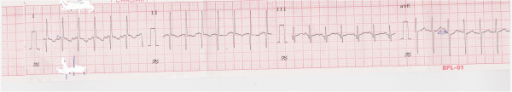 Electrocardiography showing inverted p wave in lead I.