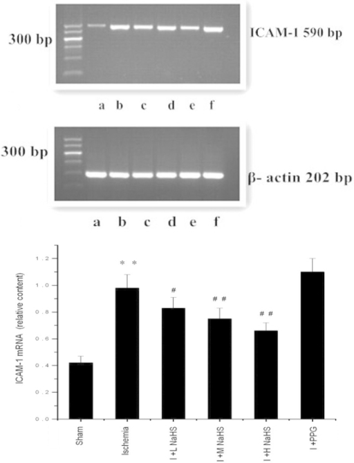 Effect of hydrogen sulfide on the change in the expression of ICAM-1 mRNA in myocardial tissue in rats, as assessed using reverse transcription-polymerase chain reaction analysis: (a) Sham, (b) ischemia, (c) I + L NaHS, (d) I + M NaHS, (e) I + H NaHS, (F) I + PPG. Data are presented as the mean ± standard error of the mean (n=5). **P<0.01 vs. the sham group; #P<0.05 and ##P<0.01 vs. the ischemia group. Sham, rats underwent the surgical procedures but without the ischemic insult, followed by treatment with saline; Ischemia, rats underwent the surgical procedures and were then treated with saline; I + L NaHS, ischemic rats treated with 0.78 mg/kg NaHS; I + M NaHS, ischemic rats treated with 1.56 mg/kg NaHS; I + H-NaHS, ischemic rats treated with 3.12 mg/kg NaHS; I + PPG, ischemia rats treated with 30 mg/kg PPG; NaHS, sodium hydrosulfide; PPG, propargylglycine; ICAM-1, intercellular adhesion molecule-1.