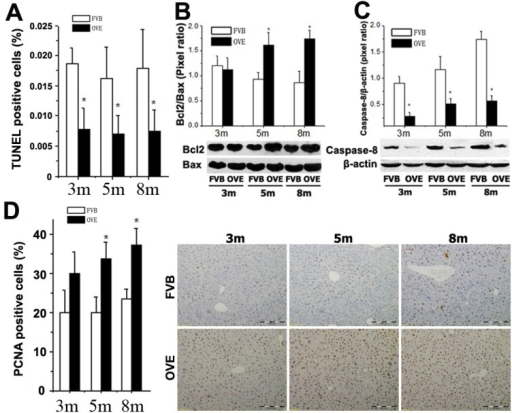 (A) Quantitative analysis of apoptotic cell death in the liver tissues by TUNEL staining. (B and C) The expressions of Bax, Bcl-2, and caspase-8 were detected by Western blotting assay. (D) Quantitative analysis of hepatocytes proliferation and representative images of positive PCNA staining. m: mouse age in months. OVE: OVE26. Data are presented as mean ± SD (n = 7 in each group). * P<0.05 compared to FVB controls.