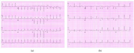 Electrocardiogram. Day 1 ECG on left and day 2 on right. Day 1 ECG reveals probable sinus tachycardia with first-degree heart block at 111 bpm. Day 2 ECG shows complete heart block with a ventricular rate of 67 bpm.