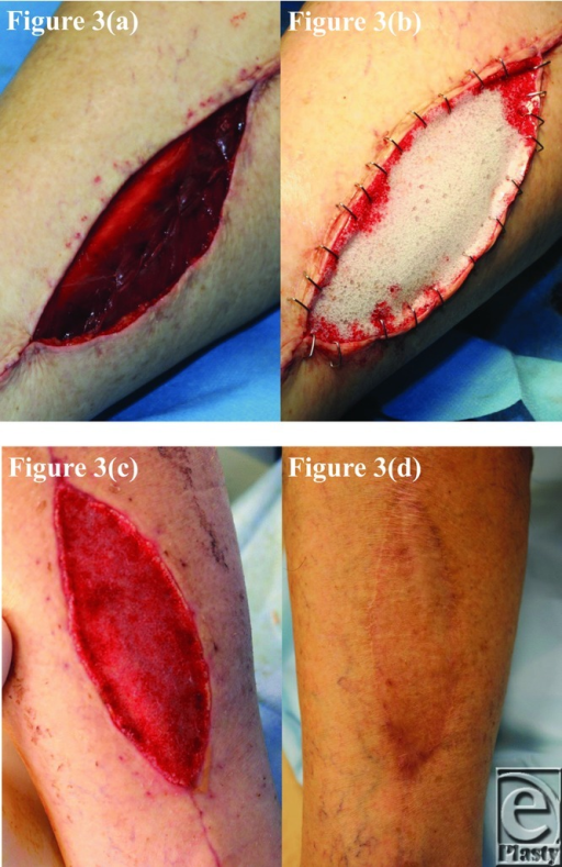 Patient 3 temporal series: (a) day 0 wound; (b) day 0 BTM implanted; (c) day 40 BTM delaminated and dermabraded; and (d) day 391 final graft BTM/scar. BTM indicates biodegradable temporizing matrix.