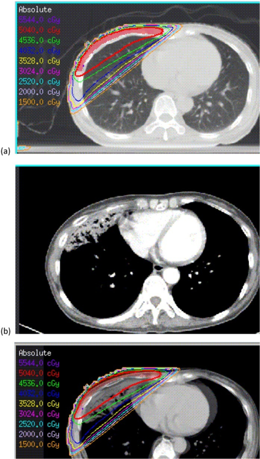 (a) A sample breast cancer treatment plan, (b) diagnosed with RP at 3 months after RT, (c) diagnosed with RP image fused with the original isodose curves.Abbreviation: RP: radiation pneumonitis; RT: radiotherapy.