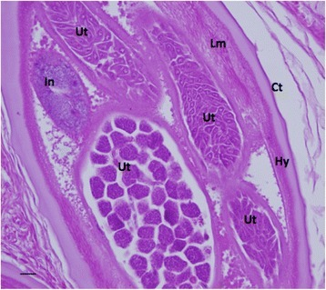 A healthy adult untreated female O. volvulus demonstrating multiple developing forms in the uterus (H&E stain). Key: Ct: cuticle, Hy: hypodermis, Lm: longitudinal muscle, In: intestine, Ut: uterus