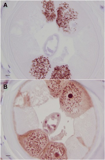 a Female O.volvulus stained with anti-WSP demonstrating the presence of Wolbachia. b A serial section stained the anti-Nras stain showing an intense punctate pattern associated with Wolbachia