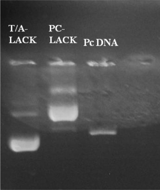 Electrophoresis of T/A-LACK and pc- LACK recombinant plasmids and pcDNA3 plasmid were loaded on a 1% agarose gel./ Column1: T/A-LACK recombinant plasmid/Column2: pc- LACK recombinant plasmid/Column3: The band of pcDNA3