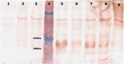 Western blot analysis of expressed gene productColumn1:DH5α before expressing by IPTG (control)Column2: pc-DNA3.1 before expressing by IPTG (control)Column3: pc-LACK before expressing by IPTG (control)/Column4: Pre stain protein ladderColumn5: pc-LACK 1h after expressing by IPTGColumn6: pc-LACK 2h after expressing by IPTGColumn7: pc-LACK 3h after expressing by IPTGColumn8: pc-LACK 4h after expressing by IPTGColumn9: pc-LACK 5h after expressing by IPTG