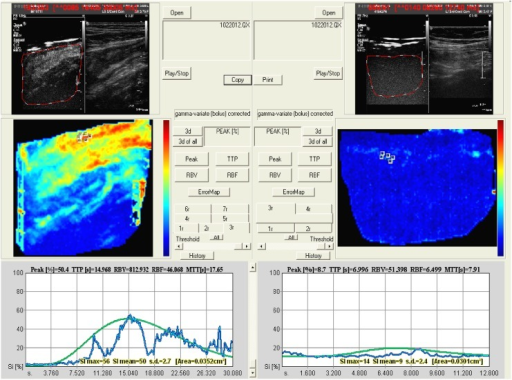Perfusion map obtained by Qontrast software.Left side: contrast uptake based on increased microvascularization of the terminal ileum in a patient with severe endoscopic disease activity. Right side: contrast uptake of the terminal ileum in a patient with normal endoscopic appearance.