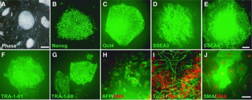 Characterization of iPSCs reverted from naivetropic iPSCs. (A–G) Phase contrast image (A) and immunostaining of rP002 reverted iPSCs, which were converted from the naivetropic state back to the primed state, for ESC markers Nanog (B), OCT4 (C), SSEA3 (D), SSEA4 (E), TRA-1-81 (F), and TRA-1-60 (G). (H–J) Spontaneous differentiation of rP002 in vitro to cells expressing α-fetoprotein (AFP, endoderm) (H), β-tubulin (TuJ1, ectoderm) (I), or α-smooth muscle actin (SMA, mesoderm) (J). Scale bars, 100 μm