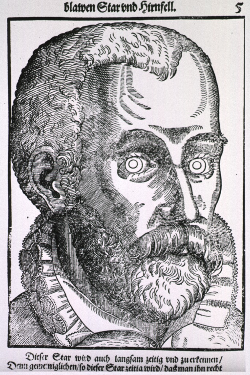 <p>Close-up of the face of a man with cataract.</p>