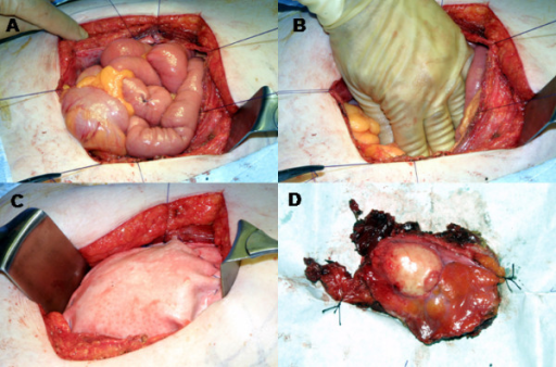 This figure documents the surgical resection. (A and B) shows the abdomen after the en-bloc resection of the abdominal wall tumour. Stay sutures are shown on the edges of the large surgical defect. (C) The Permacol® mesh has been sutured on to the inner layer of the abdominal wall in direct contact with the bowel. (D) The peritoneal surface of the excised surgical specimen is shown.