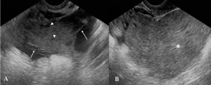 Transvaginal pelvic ultrasound images (A,B) showed a complex retrouterine mass with a homogeneous solid component (*, B) and cystic areas (arrowhead, A) intermingled with linear septa (arrow, A)