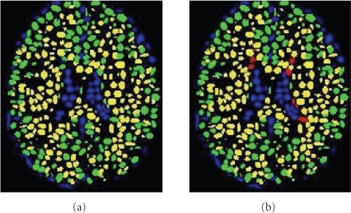 Illustration of the GMM representation. (a) Segmenting the brain image into three main tissues. (b) Adding a fourth class for MS lesions; Color Legend: Blue-CSF, Green-GM; Yellow-WM; Red-MS.