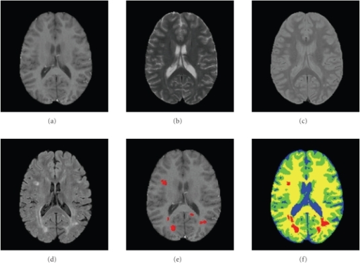 Real brain images, example 2. (a) T1,  (b) T2,  (c) PD,  (d) FF,  (e) Manual segmentation of MS lesions (red) overlayed on T1,  (f) CGMM-CE segmentation. Blue: CSF; Green: GM; Yellow: WM; Red: MSL.