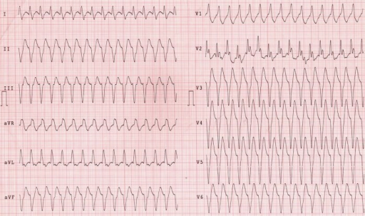 Episode of sustained ventricular tachycardia with haemodynamic instability. Precordial leads are placed on the right side of chest. Righ sided extremity electrodes are placed on the left and left electrodes are placed on the right side.
