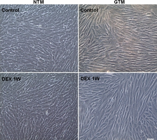 The morphology of trabecular meshwork cells before and after dexamethasone  treatment. Normal human trabecular meshwork (NTM) and primary open angle glaucoma trabecular meshwork (GTM) cells were obtained and cultured under identical culture protocol. GTM cells were slightly larger compared to NTM cells. Cell morphology shows no significant changes after treatment with 10−7 mol/l DEX for 1 week (1W) compared to the untreated control. Scale bar=50 μm.