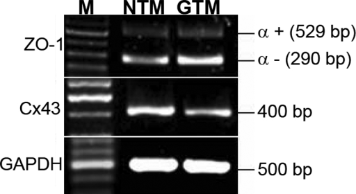 Trabecular meshwork cells express zonula occludens 1 and Cx43. NTM cells have lower zonula occludens 1 (ZO-1) α– isoform levels but higher connexin 43 (Cx43) levels compared to GTM cells, yet NTM and GTM cells have similar ZO-1 α+ levels, as illustrated by RT–PCR. GAPDH was used as the internal loading control. M stands for molecular size ladder. n=3.