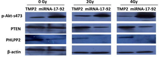The expression of the proteins p-Akt, PTEN and PHLPP2 in Z138c-TMP2 and Z138c-miRNA-17-92 cells after radiation. The protein expression of pAkt, PTEN and PHLPP2 in both cell lines was detected by immunoblot analysis at 1 day after radiation as described in materials and methods. One representative of three experiments has been shown.