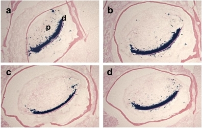Effects of fixative solutions on β-galactosidase activity.The cross sections of the mandibular incisors of the 3-month-old Dspp-LacZ mouse skulls fixed with either 0.25% Glutaraldehyde (a), 4% paraformaldehyde (b), Zinc Formalin (c), or 10% Formalin (d), for 1 h at RT, decalcified in 0.1% EDTA for 3 weeks and then stained for β-galactosidase activity. In all the sections, clear staining was observed in the odontoblast layer and some positive spots were detected in the tooth pulp. d, dentin; p, pulp.